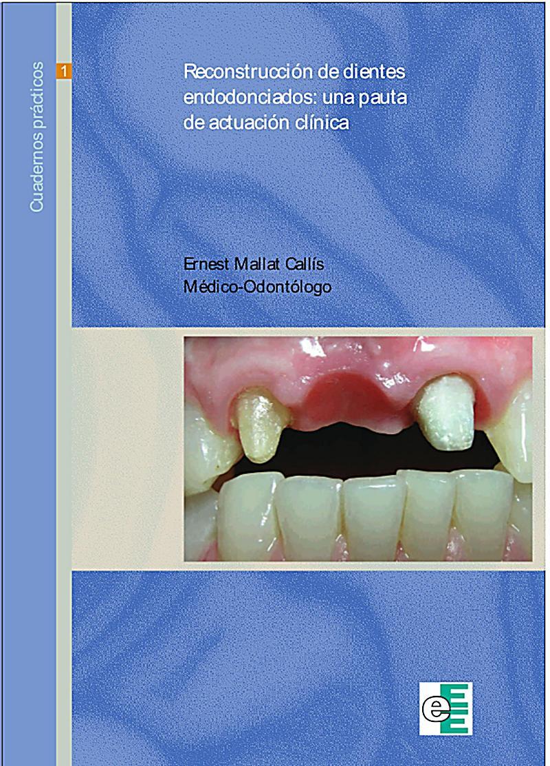 Reconstrucción de dientes endodonciados