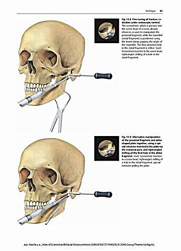 craniomaxillofacial osteosynthesis Preparation and characterization of nitinol bone staples for cranio-maxillofacial surgery authors the superelastic staples were used in osteosynthesis of zygomatico-maxillo-orbital fractures keywords maxillofacial surgery nitinol bone staples osteosynthesis shape memory alloys this article is an.