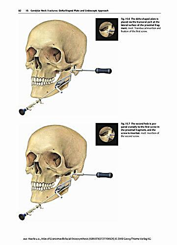 craniomaxillofacial osteosynthesis Get this from a library atlas of craniomaxillofacial osteosynthesis : miniplates, microplates and screws [franz härle maxime champy bill c terry.