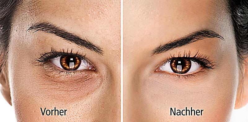 how to get rid of veins under eyes cream