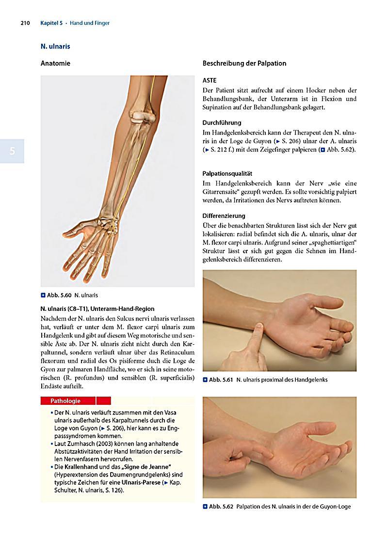 Tolle Unterarm Sehnen Anatomie Bilder - Menschliche Anatomie Bilder ...