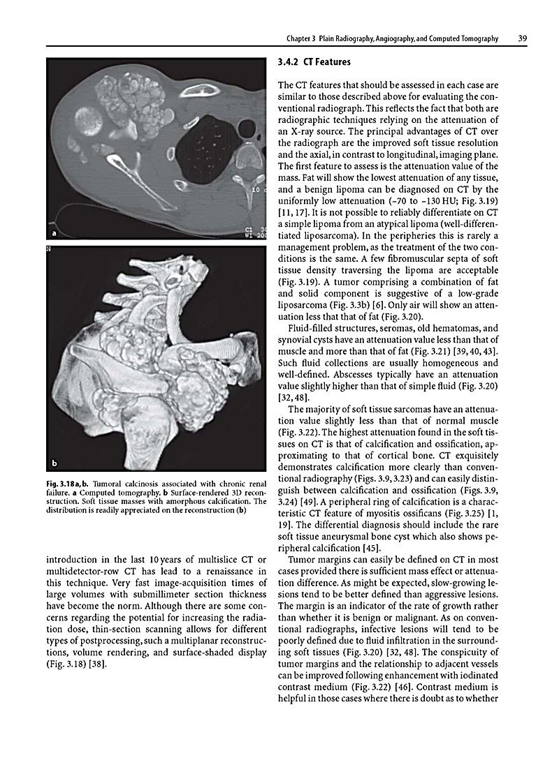 mri of soft tissues essay The aim of this essay is to demonstrate the mr findings of vault lesions, their  signal intensities and their extension to soft tissues method a retrospective.