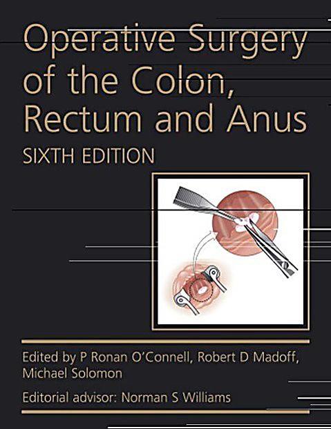 Surgery of the colon rectum anus