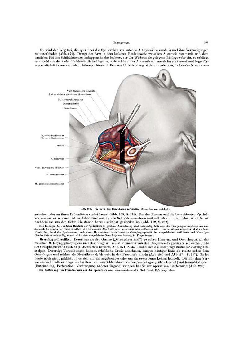 Tolle Hals Anatomie Bilder Fotos - Menschliche Anatomie Bilder ...