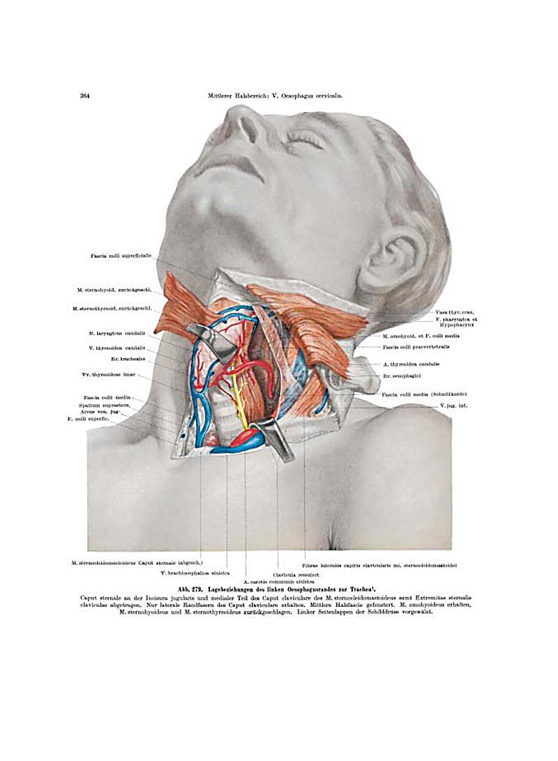 Atemberaubend Ct Anatomie Des Halses Bilder - Menschliche Anatomie ...