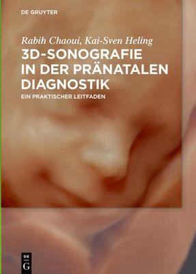 3D-Sonographie in der pränatalen Diagnostik, Rabih Chaoui, Kai-Sven Heling