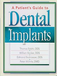 surface treatment of dental implants pdf
