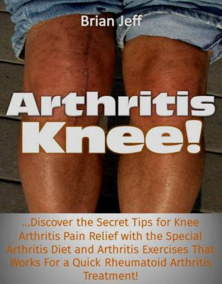 Arthritis Knee! …Discover the Secret Tips for Knee Arthritis Pain Relief with the Special Arthritis Diet and Arthritis Exercises That Works For a Quick Rheumatoid Arthritis Treatment!, Brian Jeff