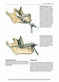 craniomaxillofacial osteosynthesis Read the latest articles of journal of cranio-maxillofacial surgery at sciencedirectcom, elsevier's leading platform of peer-reviewed scholarly literature.