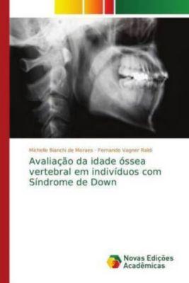 Avaliação da idade óssea vertebral em indivíduos com Síndrome de Down, Michelle Bianchi de Moraes, Fernando Vagner Raldi