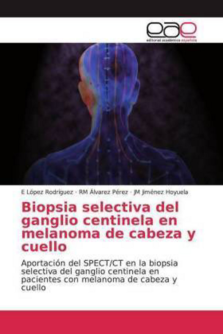 Biopsia Selectiva Del Ganglio Centinela En Melanoma De