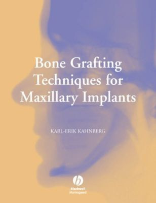Bone Grafting Techniques for Maxillary Implants, Karl-Erik Kahnberg