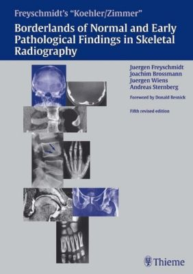 Borderlands of Normal and Early Pathologic Findings in Skeletal Radiograph, Köhler, Zimmer