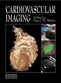 Cardiovascular Imaging, Yi-Hwa Liu, Frans J. Th. Wackers