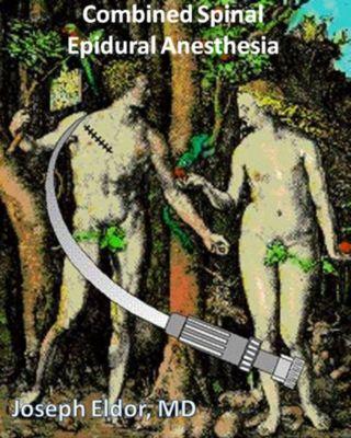 Combined Spinal-Epidural Anesthesia, Joseph Eldor