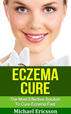 Eczema Cure: The Most Effective Solution to Cure Eczema Fast, Dr. Michael Ericsson