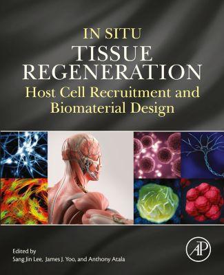 In Situ Tissue Regeneration