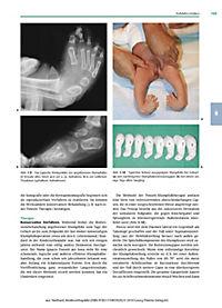 Kinderorthopädie - Produktdetailbild 2