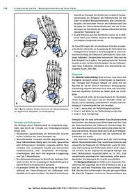 Kinderorthopädie - Produktdetailbild 1