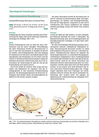 Kinderorthopädie - Produktdetailbild 4