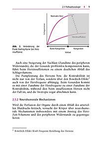 Leitfaden Herztransplantation - Produktdetailbild 3