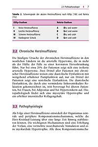 Leitfaden Herztransplantation - Produktdetailbild 2