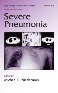 Lung Biology in Health and Disease: Severe Pneumonia