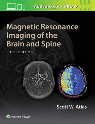 Magnetic Resonance Imaging of the Brain and Spine, 5 Vols., Scott W. Atlas