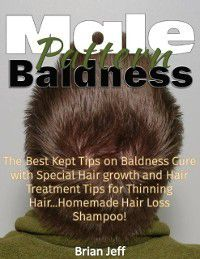 Male Pattern Baldness: The Best Kept Tips On Baldness Cure With Special Hair Growth and Hair Treatment Tips for Thinning Hair ...Homemade Hair Loss Shampoo!, Brian Jeff