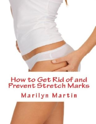 Martin, M: How to Get Rid of and Prevent Stretch Marks, Marilyn Martin