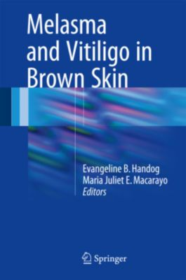 Melasma and Vitiligo in Brown Skin