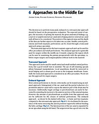 Middle Ear Surgery - Produktdetailbild 1