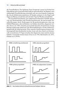 Multiple Sklerose - Produktdetailbild 2