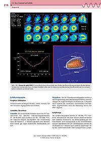 Nuklearmedizin - Produktdetailbild 8
