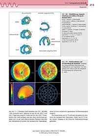 Nuklearmedizin - Produktdetailbild 5