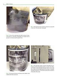 Panoramic Radiology - Produktdetailbild 2