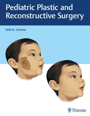 Pediatric Plastic and Reconstructive Surgery