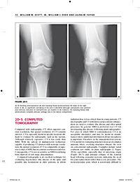 Primer on the Rheumatic Diseases - Produktdetailbild 5