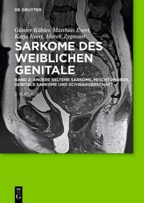 Sarkome der weiblichen Genitale, Günter Köhler, Matthias Evert, Katja Evert, Marek Zygmunt