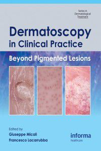 Series in Dermatological Treatment: Dermatoscopy in Clinical Practice