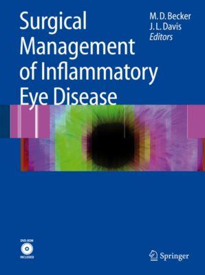 Surgical Management of Inflammatory Eye Disease