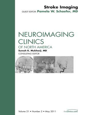 The Clinics: Internal Medicine: Stroke Imaging Update, An Issue of Neuroimaging Clinics - E-Book, Pamela W. Schaefer