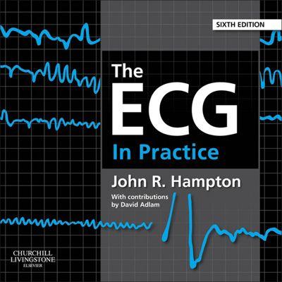 The ECG In Practice E-Book, John Hampton