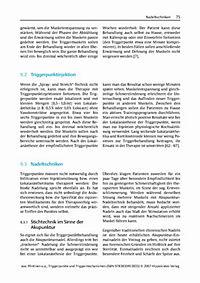Triggerpunkte und Triggermechanismen - Produktdetailbild 11