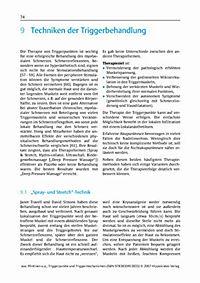 Triggerpunkte und Triggermechanismen - Produktdetailbild 10