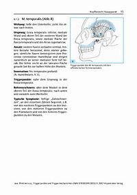 Triggerpunkte und Triggermechanismen - Produktdetailbild 4