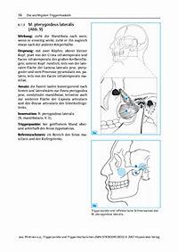 Triggerpunkte und Triggermechanismen - Produktdetailbild 5