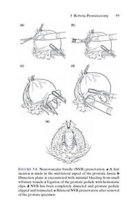 Urologic Robotic Surgery in Clinical Practice - Produktdetailbild 4