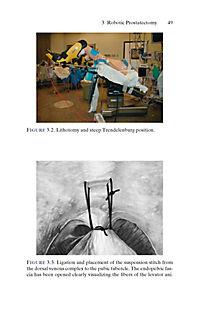 Urologic Robotic Surgery in Clinical Practice - Produktdetailbild 1