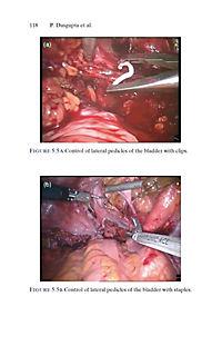 Urologic Robotic Surgery in Clinical Practice - Produktdetailbild 7